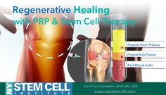 Stem cells are cells in your body that help repair injuries. Injecting PRP or stem cells into an injury stimulates healing. Call Us Acl Tear, Cord Blood Banking, Stem Cell Therapy, Regenerative Medicine, Wound Care, Red Blood Cells, Bone Marrow, Pain Management
