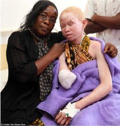 Albinos of Tanzania - hunted down, sold, and hacked for body parts for 'good luck'