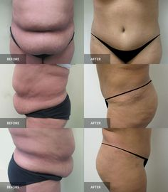 Tummy Tuck: before & after, 6 months post-op  #tummytuck #abdominoplasty #plasticsurgery Tummy Tuck Before After, Tummy Tucks, Abdominal Muscles, Plastic Surgery, 6 Months, Cosmetics, 6 Mo, Abs