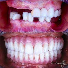 Será que o paciente gostou? PT incrível do @r_arrevillaga lá de Bogotá. Sigam o perfil dele é cheio de coisas legais! #odontologia #odontologiaestetica #odontosemfronteiras #pt #protese #dentistry #dentista #sorrisonovo by odontosemfronteiras Our General Dentistry Page: http://www.myimagedental.com/services/general-dentistry/ Google My Business: https://plus.google.com/ImageDentalStockton/about Our Yelp Page: http://www.yelp.com/biz/image-dental-stockton-3 Our Facebook Page…