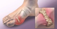 Gout is a type of arthritis, which occurs as a result of the accumulation of uric acid, which forms crystals in the joints, and leads to inflammation and intense joint pain. In most cases, gout is Home Remedies For Gout, Gout Remedies, Natural Home Remedies, Herbal Remedies, Rheumatoid Arthritis Symptoms, Types Of Arthritis, Uric Acid Gout, Easy Juice Recipes, Delicious Recipes
