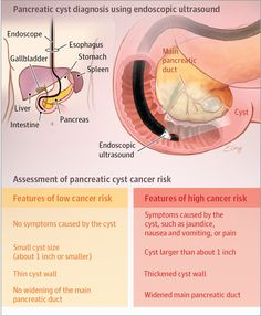 Diagnosis and Treatment of Pancreatic Cystic Neoplasms.