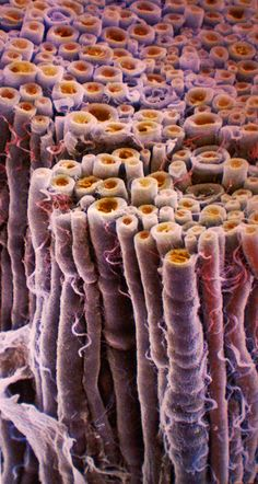 A cross section of a bundle of nerve fibers.  Axons (orange) are wrapped in myelin (purple); an extension of the membrane of glial cells.  Myelin has high lipid content, and acts to insulate the axons, causing them to transmit nerve impulses much faster.
