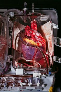 Human Heart, ready for the transplant
