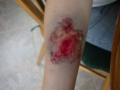 This may look a little gruesome, but for anyone celebrating International Zombie Day, here's a tutorial on how to make your own flesh wounds. B-)