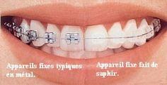Les bagues dentaires ceramiques