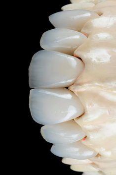 Lente Dental, Dental Photos, Braces Tips, Veneers Teeth, Dental Anatomy, Human Anatomy Art, Dental Art, Prado, Dentistry