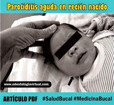 parotiditis-recién-nacido