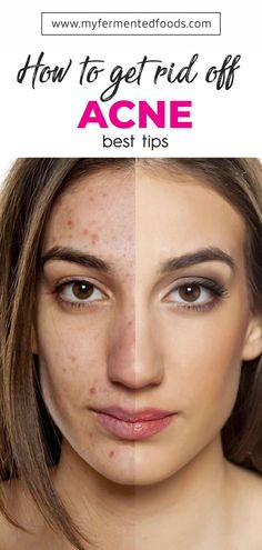 Do you want cleaner skin? Check out how you can use apple cider vinegar to remove acne and pimples. Do you want cleaner skin? Check out how you can use apple cider vinegar to remove acne and pimples. Homemade Beauty Recipes, Homemade Skin Care, Homemade Beauty Products, Apple Cider Vinegar Face, Apple Cider Vinegar Benefits, Coconut Oil Weight Loss, Diy Beauty Treatments, Acne And Pimples, Remove Acne