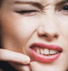 Los mitos que existen alrededor de el acné. http://www.linio.com.mx/salud-y-cuidado-personal/cuidado-de-la-piel/