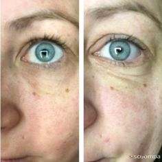 Lip Wrinkles, Under Eye Wrinkles, Hair Dye Removal, How To Reduce Pimples, Cystic Acne Treatment, Greasy Skin, Coconut Oil For Face, Chemical Peel, Exfoliant