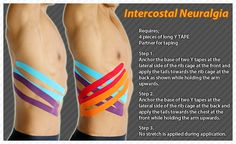 Benefits of Kinesiology Tape Archives • TheraTape Education Center