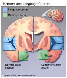 Alzheimer's disease is a brain disorder named for German physician Alois Alzheimer , who first described it in Alzheimer's disease (. Early Onset Dementia, Alzheimer's And Dementia, Alzheimer's Brain, Brain Art, Behavioral Neuroscience, Alzheimer's Symptoms, Ap Psychology, Online Blog, Alzheimers