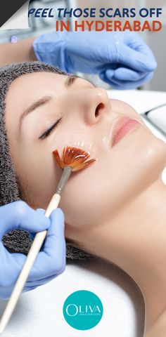 Acne has become the biggest beauty problem Hyderabad is are facing as of today. It lowers one's self-esteem and confidence while marring your natural beauty. And, acne doesn't just make you self-conscious but leaves behind hideous scars and pigmentations. But there is one convenient solution, and that is Chemical Peels. Learn more about Chemical Peels and how it is the best solution to remove all your acne scars. #acnescars #scars #acne #pimplemarks #acnemarks #clearskin #skincare Pimple Marks, Acne Marks, Pimples, Acne Scar Removal, Chemical Peel, How To Get Rid Of Acne, Clear Skin, Healthy Skin, Hyderabad