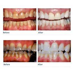 Tiny Dental Crowns Before And After Pictures #dentalimplantsbeforeafter #DentalCrownPorcelain Teeth Whitening Procedure, Teeth Whitening Remedies, Teeth Whitening System, Natural Teeth Whitening, Whitening Kit, Tooth Sensitivity, Dental Implants, Dental Teeth, Dental Surgery