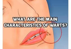 Revealing What Are Really 3 Big Attributes of Warts #RemoveWartsFast ,