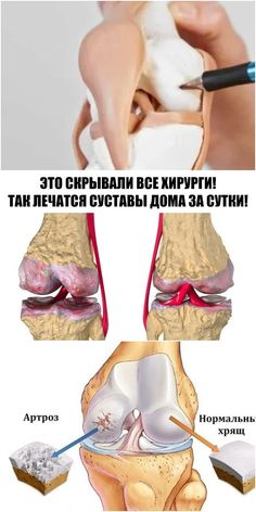Это скрывали все хирурги! Так лечатся суставы дома за сутки Heal Cracked Heels, Pole Dancing Clothes, Holistic Nutrition, Low Carb Diet, Weight Loss Journey, Food Hacks, Natural Remedies, Healthy Lifestyle, Food Photography