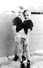 Ronnie and Donnie Galyon - America's Oldest Conjoined Twins