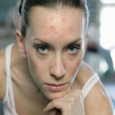 Natural cure for adult acne