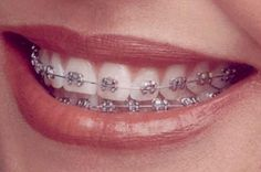 Why Is Early #Orthodontic #Treatment Important?