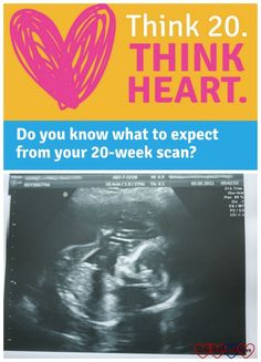 Think 20. Think Heart - why the 20-week scan is so important for helping to detect congenital heart defects