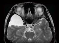 """Neurology Now: Agony and Arachnoiditis: Named after its inflammation of the brain's """"spider"""" membrane, arachnoiditis is a rare, extremely painful condition that requires individualized treatment. -- American Academy of Neurology Cauda Equina, Spinal Canal, Central Nervous System, Neurology, Medical Students, Health And Wellness, Brain, Spider, Middle"""