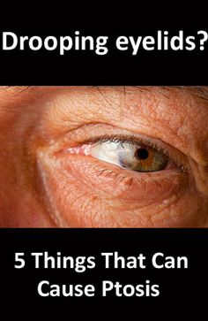 Ptosis (TOE-sis) refers to drooping of an upper eyelid of one or both eyes. The droop may be barely noticeable, or the lid can descend over the entire pupil. Click to learn 5 causes of drooping eyelids.