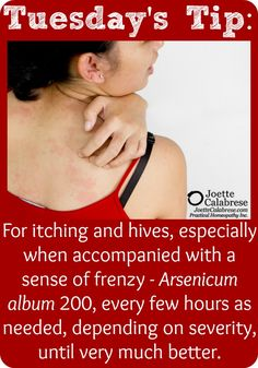 Emergency Remedy Series: Bites Makes Me Itchy. Hives Remedies, Homeopathic Remedies, Natural Remedies, Homeopathy Medicine, Holistic Medicine, Natural Medicine, Face Book, Lyme Disease