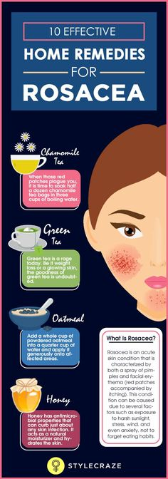 Get Rid of Cheek Acne 10 Natural Remedies To Manage Rosacea + Types, Symptoms, And Causes. Home Remedies For Pimples On Cheeks Home Remedies For Rosacea, Natural Acne Remedies, Skin Care Remedies, Red Face Remedies, Pimples On Chin, Acne On Cheeks Causes, How To Get Rid Of Acne, Beauty Tips, Alternative Health