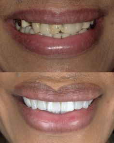 It's smiling Wednesday! This was a combination case, of porcelain restoration and dentures and implants. I'm jealous. Them some nice teefers! # porcelainveneers Useful Teeth Whitening Strips Im Jealous, Cosmetic Dentistry, Dental Implants, Teeth Whitening, Wednesday, Restoration, Porcelain, Nice, Cases
