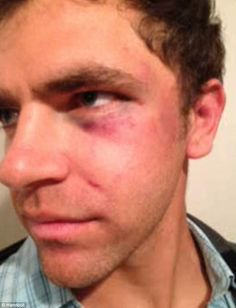 Cops tasered deaf man and knock him unconscious while he was attempting to use sign language --- A new lawsuit accuses the Hawthorne Police Department of beating Jonathan Meister as he tried to tell them he was deaf during a confrontation in Feburary 2013