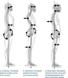 Abnormalities of the Vertebral Column
