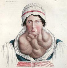 Jean Louis Alibert , 1817 thyroid disease
