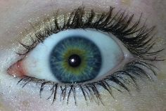 Central heterochromia. I finally found out what this is called! This is my eye and I love the fact that it's different than most peoples.