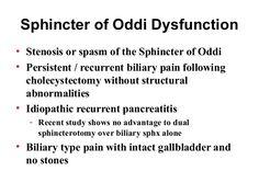 sphincter of oddi dysfunction - Google Search