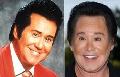 8 of The Worst Male Celebrity Plastic Surgeries (These Hollywood Hunks Went from Handsome to Gruesome) | StyleBlazer