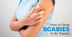 Relentless itching,skin rashes, redness and blisters — these are the not-so-fun symptoms of scabies. Try these simple home remedies for scabies.