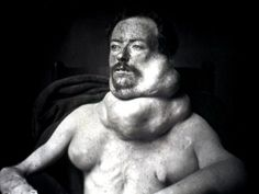 In the 19th Century, doctors were reluctant to operate on thyroid tumors like the ones shown in this 1875 photograph. That's because the gland was so full of blood vessels that serious bleeding was a real risk. That meant some patients, like this man, faced the threat of slow asphyxiation.