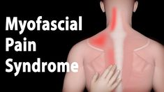 Myofascial Pain Syndrome and Trigger Points Treatments, Animation. Massage Dos, Self Massage, Neck And Shoulder Pain, Neck Pain, Myofacial Release, Muscle Knots, Referred Pain, Postural, Trigger Point Therapy