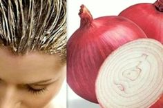 Hair mask with onion is above all a powerful nutrition for the scalp with minerals and vitamins that are in high amount in this unique product. The mask with onion hydrates, stops hair loss, improves the structure and accelerates the growth of hair. Stop Hair Loss, Prevent Hair Loss, Onion For Hair, Hair Issues, Hair Loss Remedies, Tips Belleza, Shiny Hair, Glossy Hair, Hair Health