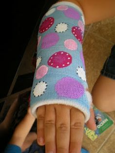 """""""Hey guys I broke my arm while I was camping with Johnny.""""* @katiechodor *"""