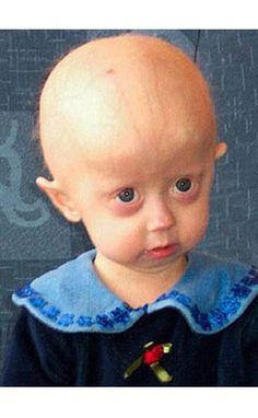 History of Progeria.
