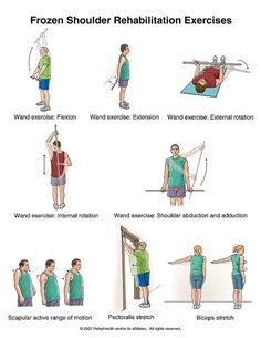Frozen shoulder or stiff shoulder exercises - Shoulder exercises physical therapy - Shoulder Rehab Exercises, Frozen Shoulder Exercises, Shoulder Workout, Shoulder Stretches, Frozen Shoulder Pain, Stiff Shoulder, Pilates, Hand Therapy, Massage Therapy