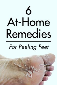 6 At-Home Remedies For Peeling Feet. If you have super dry, cracked feet, check out at these six at-home remedies that can instantly help. Cracked Feet Remedies, Dry Feet Remedies, Dry Skin Home Remedies, Dry Cracked Feet, Cracked Skin, Dead Skin On Feet Removal, Dry Skin On Feet, Baby Feet Peel, Foot Peel