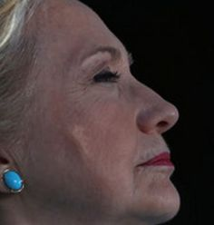 Did she fall again?  Strange gash/bump/implant appeared on side of Hillary face yesterday in NH.