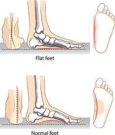 Do you have fallen arches but are unsure why you are experiencing flat feet pain? Learn what the possible causes may be.