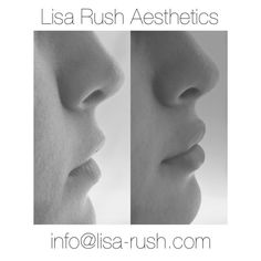 Before and after lip augmentation with dermal fillers.