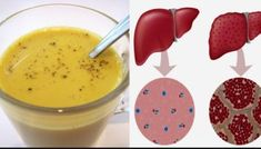 Get a Complete Liver Detox in a Week with This Turmeric Tea Recipe - Healthy Food House Natural Liver Detox, Liver Detox Cleanse, Detox Your Liver, Natural Health, Turmeric Liver, Turmeric Tea, Water Recipes, Detox Recipes, Healthy Soda