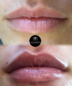 We didn't want to change the beautiful shape of this patients lips ONLY accentuate it! By defining her top boarder & adding Juvederm Ultra Plus XC into both top and Bottom belly, we ended up with a very natural result! Every lip augmentation we perform is customized to the patients needs and desires, no two lips are the same! #lipfillers #lipinjections #californiacosmeticsoc #californiacosmetics #lipgods #liplovers #lips #lipsonfleek #juvederm #botox #lippies #pretty