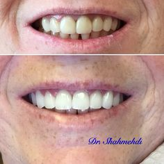 Cosmetic dentistry! By Dr. Shahmehdi. #smilemakeover #njdentist #dentalimplants #beautifulsmile #smile #teethwhitening #drshahmehdi #celebdentist #topdentist #njtopdentist #ny/njtopdentist smilemakeover #njdentist #dentalimplants #beautifulsmile #smile #teethwhitening #drshahmehdi #celebdentist #topdentist #njtopdentist #ny/njtopdent by pps_81 Our Dental Bridges Page: http://www.myimagedental.com/services/cosmetic-dentistry/bridges/ Other Cosmetic Dentistry services we offer…